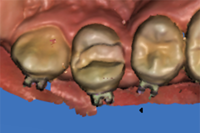 proimages/case/case-intro/implantology/implantology09/3.png