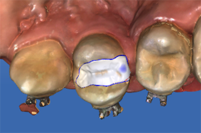 proimages/case/case-intro/implantology/implantology09/4.png